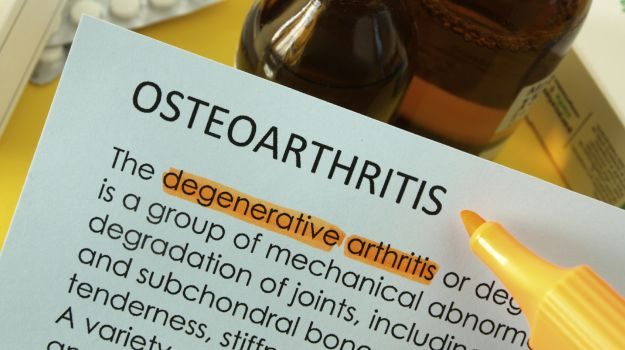 India May Have 60 Million Osteoarthritis Cases by 2025