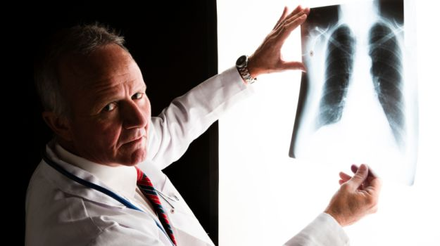 World Lung Cancer Day: 7 Ways To Lower Lung Cancer Risk