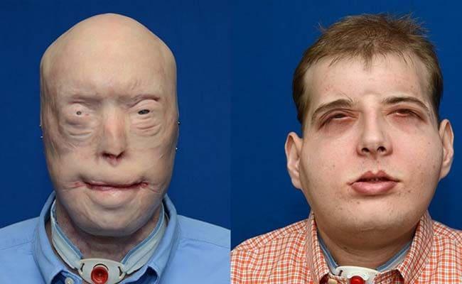 Yaralı İtfaiyecinin Dünyanın En Kapsamlı Yüz Transferi Gerisinde Kaldı