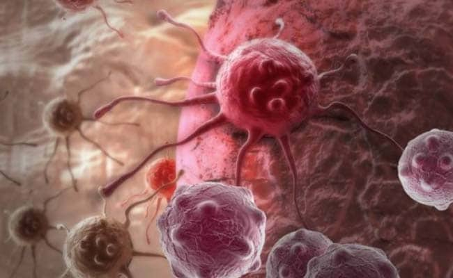 Researchers Develop New Method To Kill Cancer Cells In 2 Hours