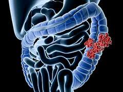 World Cancer Day 2020: जानलेवा हो सकता है पेट का कैंसर, जानें पेट के कैंसर के लक्षण, कारण, इन चीजों को खाने से खतरा होगा कम!