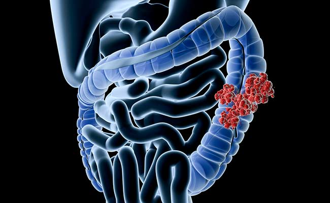 8 Ways You Can Cut Your Risk Of Colon Cancer