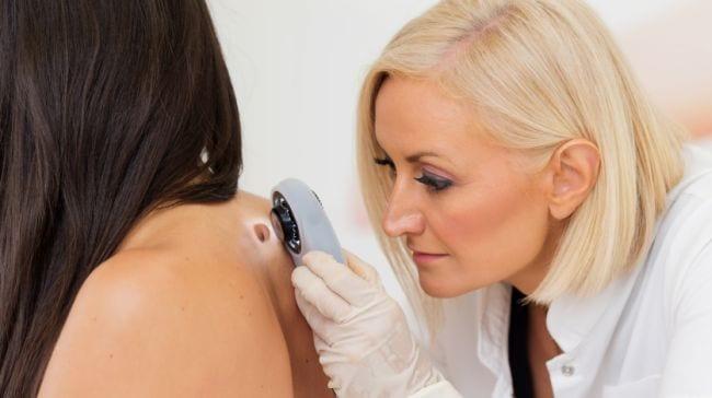 skin cancer 364
