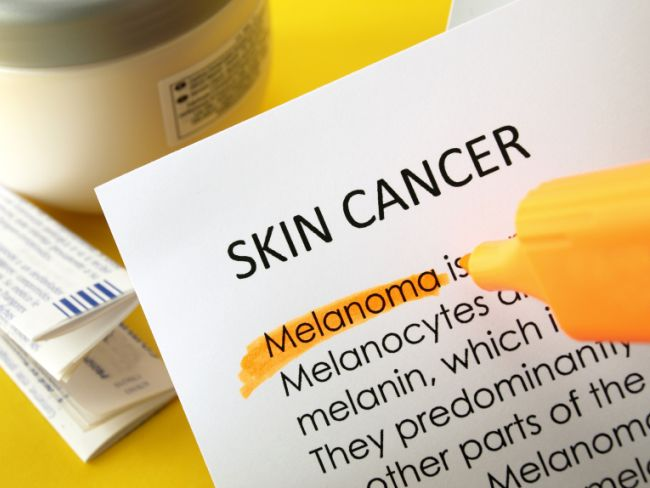 Cream Which Can Cure Melanoma Skin Cancer In Hindi