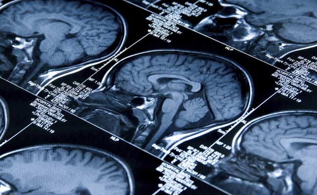 Study: Diabetes in Teens Can Affect the Grey Matter in Their Brain