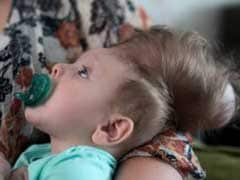 'We Had No Hope': The Amazing Story Of The Baby Born With His Brain Outside His Skull