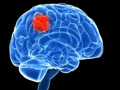 Virus That Can Help Treat Brain Tumours Identified