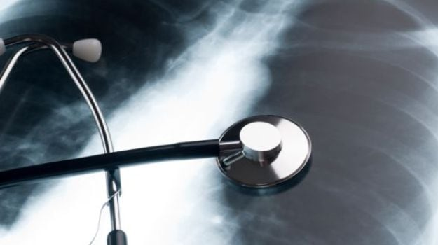 Middle Aged People More Likely to be Diagnosed with Lung Cancer