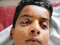 एमनेस्टी की मांग, जम्मू-कश्मीर में पैलेट गन का इस्तेमाल तुरंत रोका जाए