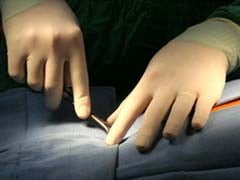 In A Rare Feat, Doctors Successfully Perform Surgery Using Fibre Tape
