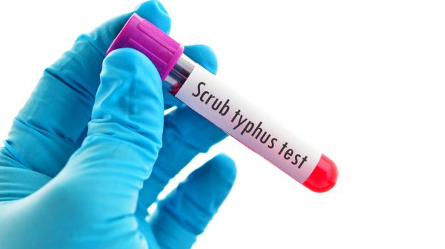 Scrub Typhus Claims 24 Lives In Himachal