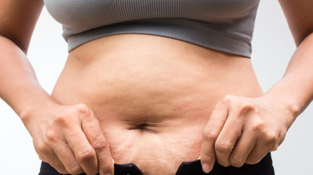 How To Remove Stretch Marks 7 Effective Natural Remedies Ndtv Food