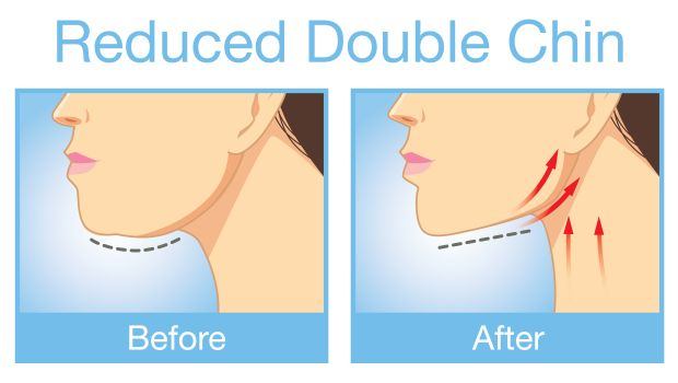 How to Get Rid of a Double Chin: 5 Easy Exercises