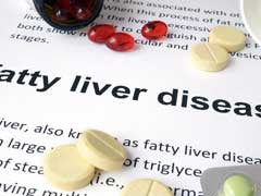 Indian Scientists Inch Closer To Treating Deadly Fatty Liver Disease