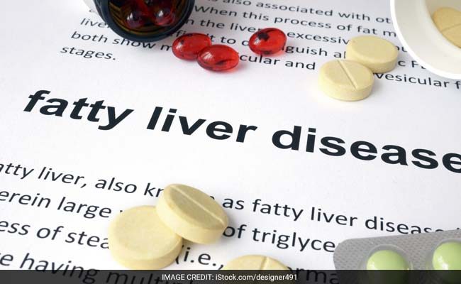 Fatty Liver Disease: 7 Best Natural Treatments