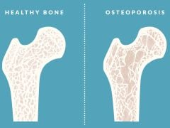 Osteoporosis Prevention: Eliminate These Foods From Your Diet To Reduce The Risk Of Osteoporosis