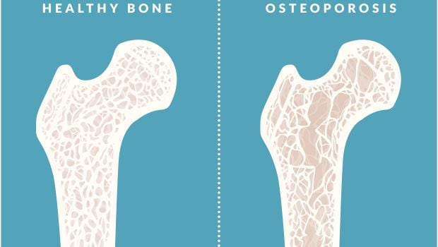 World Osteoporosis Day 2016: Foods That Can Lead to Bone Loss
