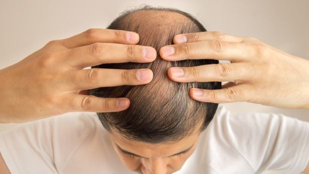 Natural And Effective Remedies For Getting Rid Of Male Pattern Baldness Once And For All