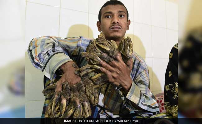 Bangladesh 'Tree Man' Sees Hope After 16 Surgeries