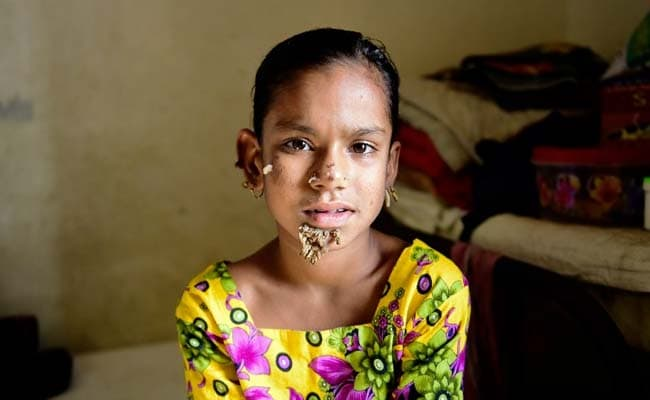 Bangladesh Treats First Case Of 'Tree Girl' Syndrome, She's Just 10