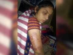 दिल्ली में पालतू कुत्ते का आतंक, महिला को काटकर अधमरा किया