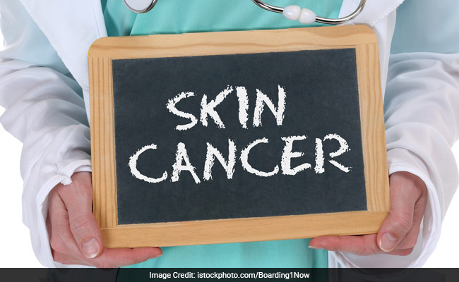 scienctific opinions on susceptibility to skin cancer New zealand has the highest rate of skin cancer, according to the annual skin cancer susceptibility index it is followed by australia, switzerland, sweden and norway it is followed by australia, switzerland, sweden and norway.