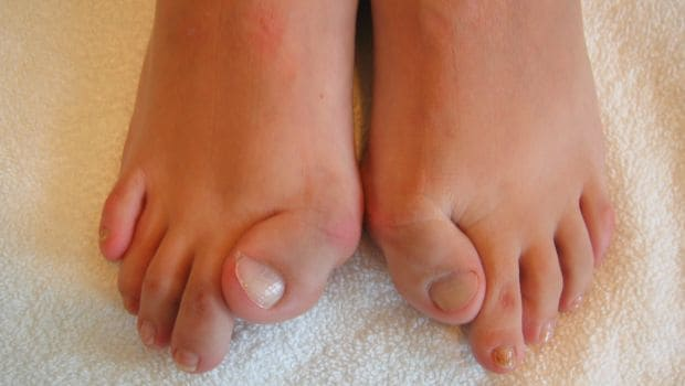 toes 620x350