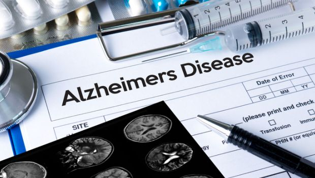 Lack of Sleep May Lead to Alzheimer's Disease