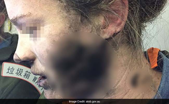Headphone Batteries Explode On Flight, Her Face And Hands Burnt