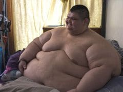 Obesity: World's Heaviest Man to Undergo Gastric Bypass Surgery