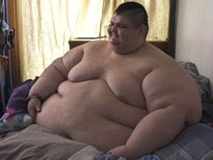 World's Most Obese Man, 32, Has Been On 3-Month Diet For Surgery: Report
