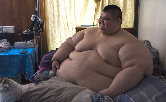 Obese foto 96