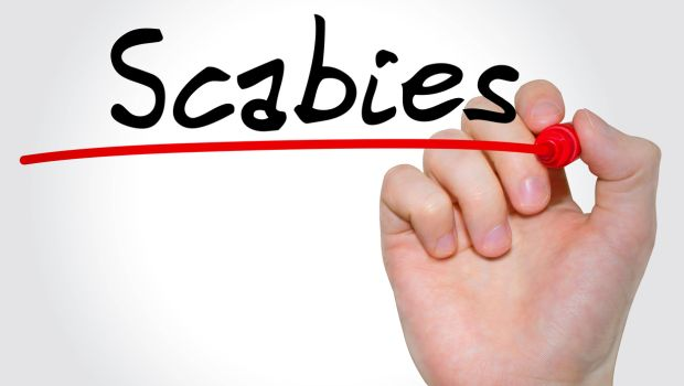 7 Most Effective Home Remedies for Scabies
