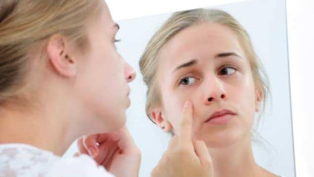 How to Get Rid of Pimples: Try These 5 Amazing Kitchen Ingredients