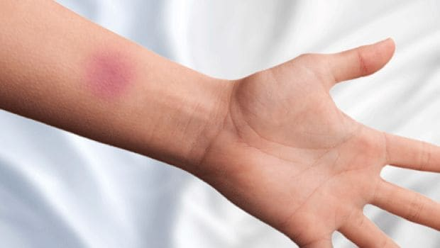 Why Do I Bruise Easily? 8 Pointers to Look Out For