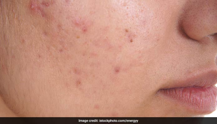 Get Rid Of Acne Blemishes With These 4 Easy Fixes