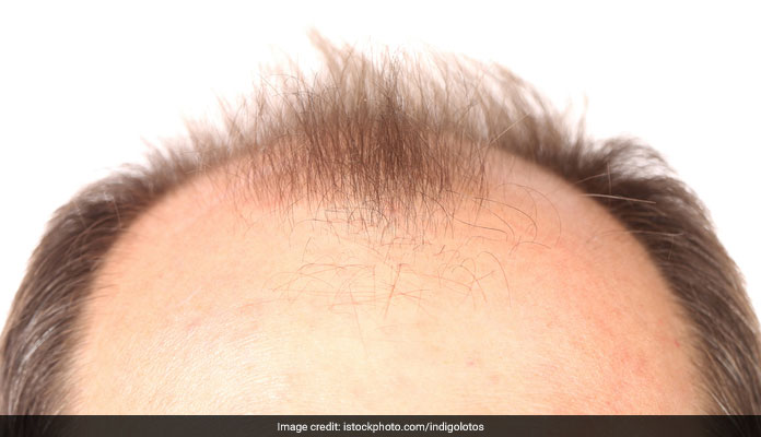 6 Things You Should Know About Hair Transplants