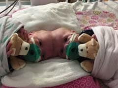 Doctors Just Separated Twin Girls Joined At The Head In One Of The World's Rarest Surgeries