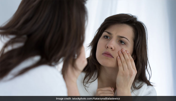 Get Rid Of Dark Circles With These Remedies