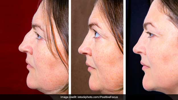 Yoga for Double Chin: An Inexpensive Way to Lose That Extra Facial Chub