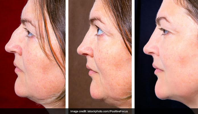 This Is How You Can Get Rid Of Your Double Chin!