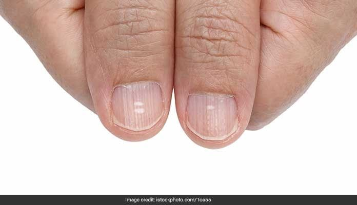 A Look At Your Nails Can Tell If You Have A Life Threatening Disease!