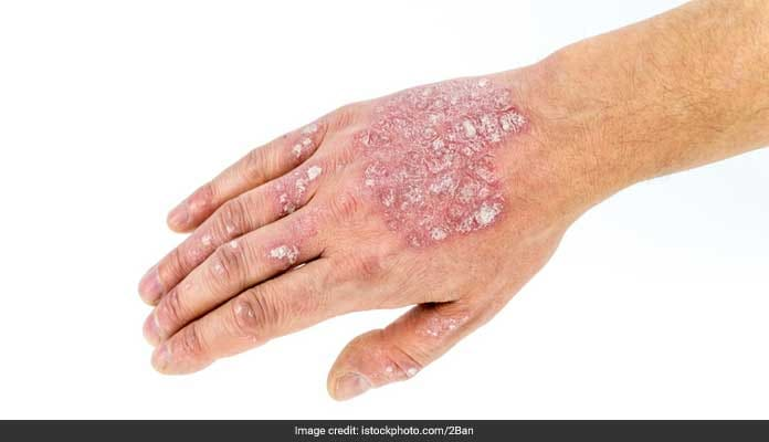 Ditch The Ointments And Try These Amazing Ayurvedic Remedies For Psoriasis