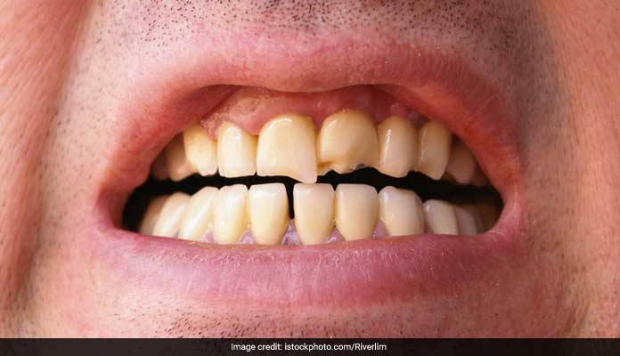 staining to teeth unhealthy living