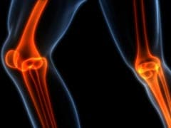 Discovery: Arthritis Could Be The Reason We Survived Ice Age