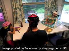 Family's Show Of Support After Baby Has To Wear Helmet Is Winning Hearts