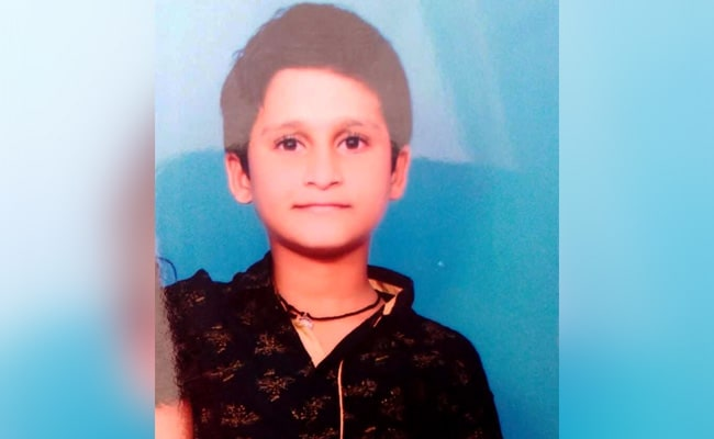 Schoolboy, 11, Imitates Daredevil Fire Breathing Act, Dies In Telangana