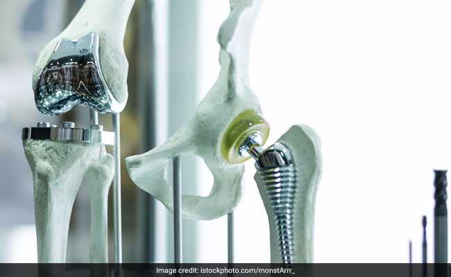 Move To Cap Knee Implant Prices Draws Flak From Health Tech Bodies