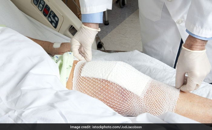 Knee Transplants To Cost Much Less, Prices Capped At Rs 55,000