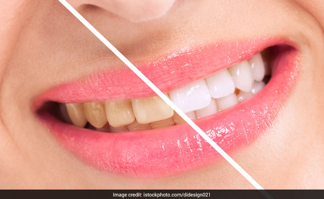 restore your pearly whites with home remedies